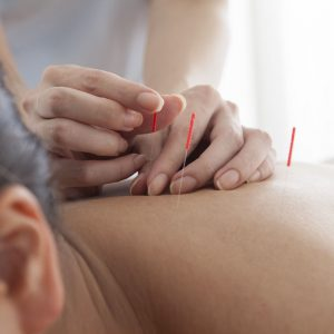 Acupuncture | Seneca Springs Wellness | Acupuncture in West Seneca New York